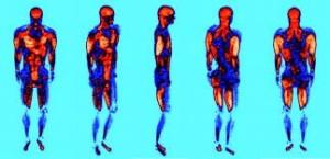 PET-scan med 3D-bilde musklelbruk hos en forsøksperson ved staking.  Sterkere rødfarge indikerer høyere glukoseopptak. Jens Bojsen-Møller et al. J Appl Physiol 2010;109:1895-1903.